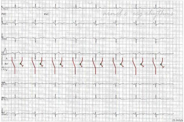 ecg rhythms  a not frequent cause of bradycardia