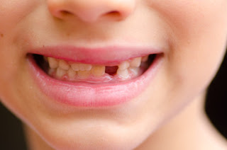 Options To Consider When You Have A Missing Tooth