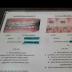 Pengalaman Pakai Braces A.K.A Pendakap Gigi Di Dr Faiz Dental Surgery