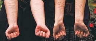 la automutilacion o autoagresion es una practica extendida entre los jovenes