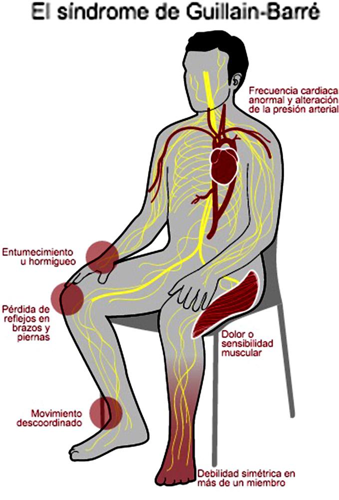 Resultado de imagen para síndrome de Guillain-Barré