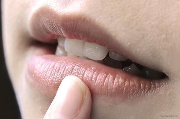 Lip Balm Untuk Bibir Hitam