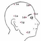 obat sakit kepala dengan pijat refleksi ditangan dan kaki serta kepala