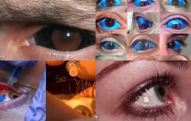 10 Very Bizarre Trends From Around The World 2. Eye tattoos and jewelry