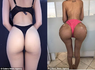 25-year-old lady spends ₦180M on surgery to look like Kim Kardashian