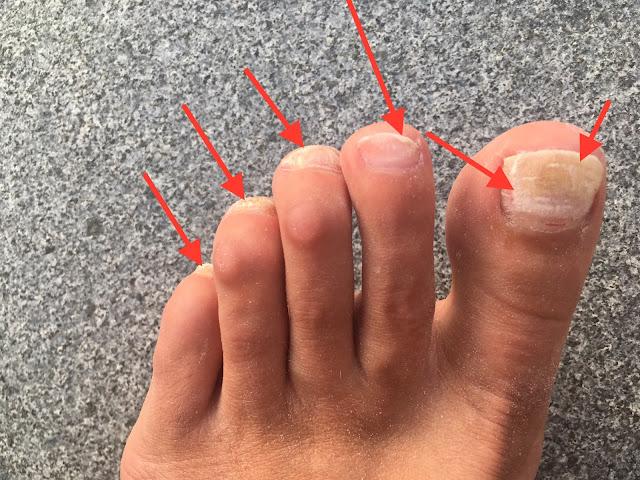 Fußnagel löst sich nach Verletzung, Nagelpilz, Jenn Cosmetic