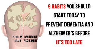 9 Habits You Need To Take Today To Stop Alzheimer's Disease Before It Starts