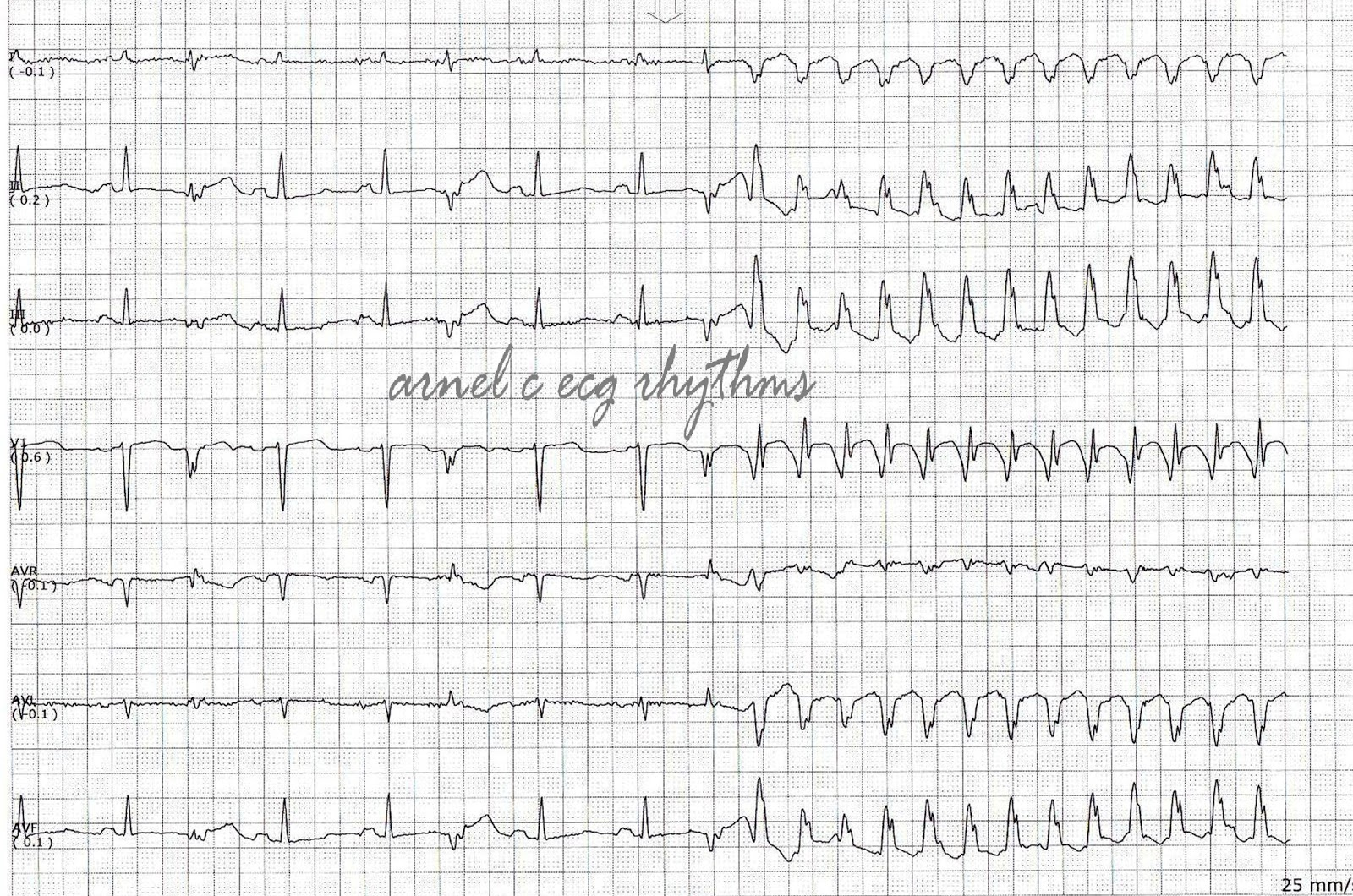 Ecg Rhythms Antitachycardia Pacing Aicd Firing
