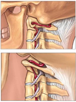 図:カイロプラティックの頚椎操作で脳卒中