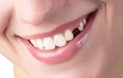 gãy răng cấm và răng khôn nên trồng răng nào trước ?