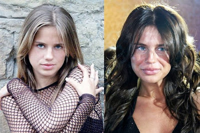 Plastic Surgery Gone Wrong Damn Cool Pictures