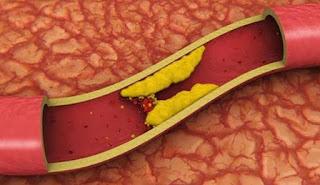 Kolesterol - Gejala, Penyebab, dan Cara Mengobati