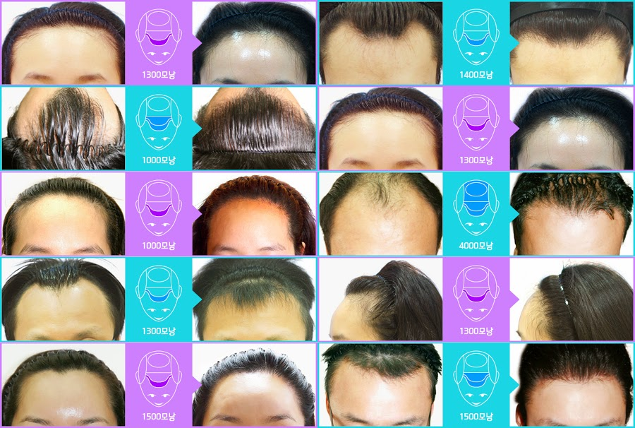 Before and After hair transplant at FORHAIR Korea, hair loss before and after, hair transplant korea, best hair clinic