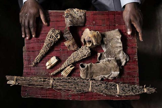 Mira el infierno que viven los albinos en África. Son el platillo más caro del mundo… 3