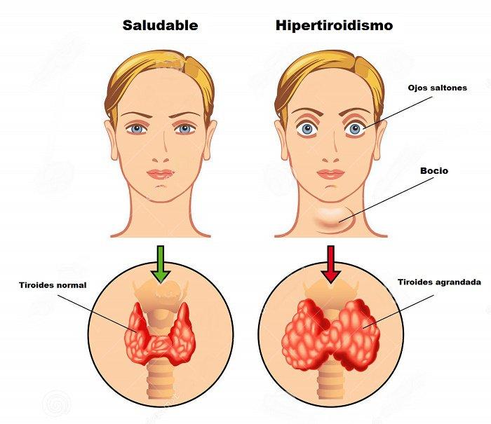 Q diferencia hay entre hipotiroidismo y hipertiroidismo