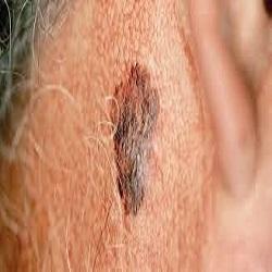 Cinco sinais de alerta para câncer de pele