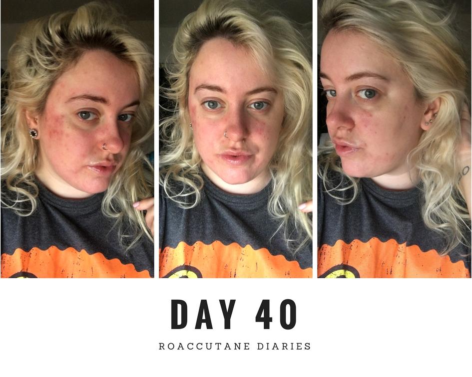 Roaccutane Diaries
