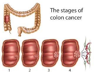ระยะมะเร็งลำไส้ใหญ่
