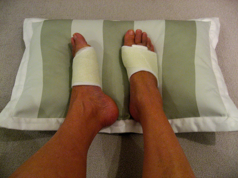 Before During & After Bunion Surgery...: #6 ~ Week Three ...