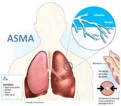 Obat Penyakit Asma Alami