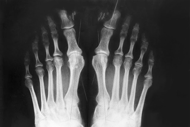 How a Bunion Changed the Way I See Life
