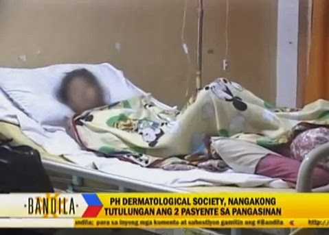 Derma group helps 2 patients with severe skin disease in Pangasinan