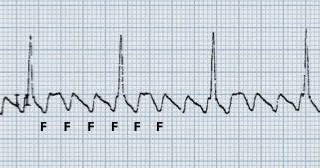 The Afib Center What Is Atrial Flutter