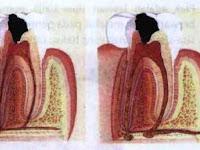 2 Jenis Penyakit Gigi dan Mulut yang Sering Terjadi
