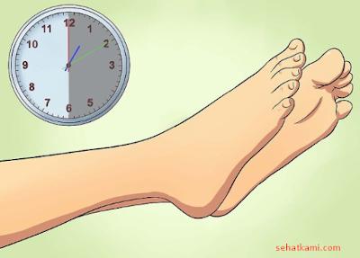 cara mengobati kaki keseleo demam istirahat