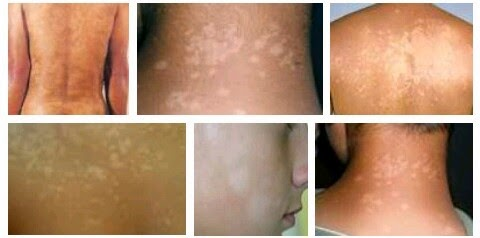 cara mudah menghilangkan panu di kulit dengan cepat dan