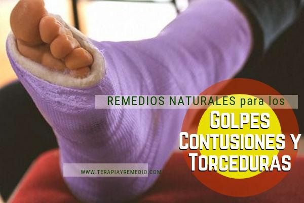 Remedios naturales para el tratamiento de golpes, contusiones y torceduras