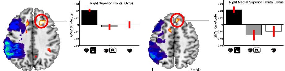 図:音楽療法で脳が増える