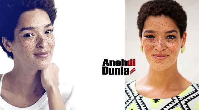 model wanita cantik kelas dunia pemilik kulit paling aneh berita rh anehdidunia com