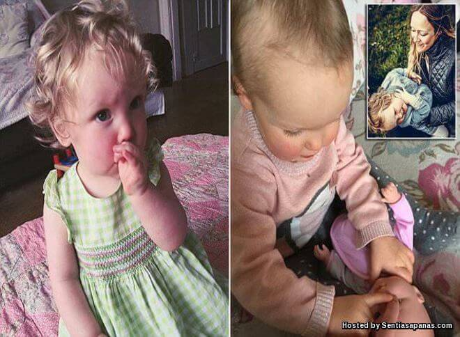 Sindrom Pelik Trichotillomania Cabut Rambut Sendiri Sampai Botak!