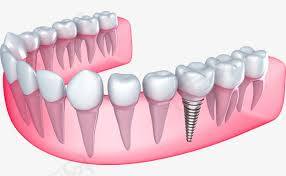 modèle orthodontie