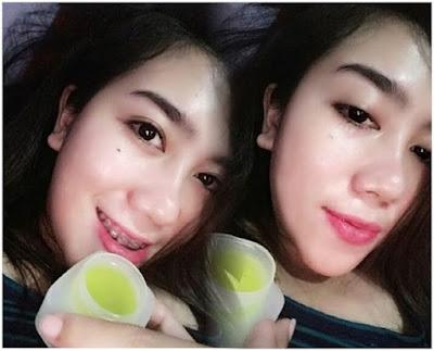 Pemakaian Jelly Cream Yellow - Jelly Arbutin - Jelly Kuning