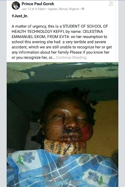 Photo: Who knows the family of a student, Celestina Emmanuel Ekom involved in terrible motor accident?