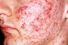 asuhan keperawatan pada klien acne vulgaris