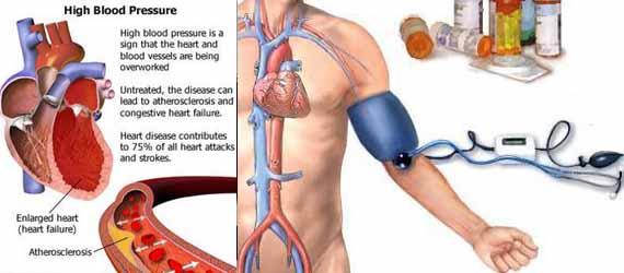 Ramuan Alami Untuk Menurunkan Kolesterol dan Darah  Tinggi