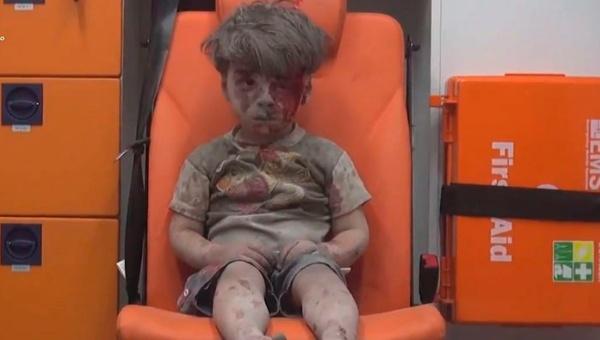 Imagen de niño sirio rescatado conmociona al mundo