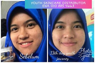 Testimoni parut jerawat berkawah semakin pudar dan hilang dengan Youth Skincare Shaklee