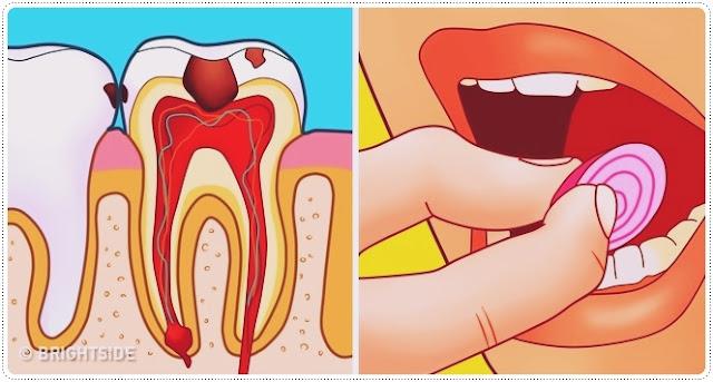حصريا هذه افضل 8 علاجات منزلية للتخلص من وجع الاسنان