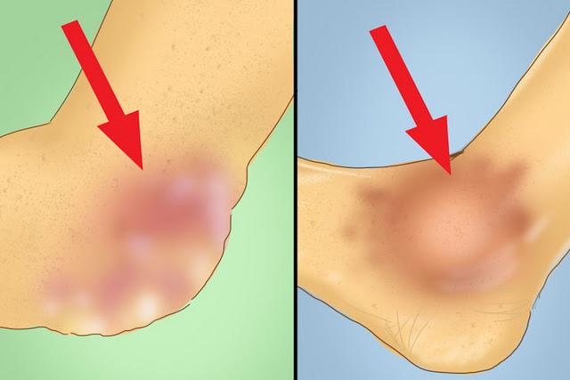 controleaza in mod natural nivelul acidului uric