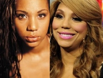 Tamar Braxton Plastic Surgery Before And After Facelift
