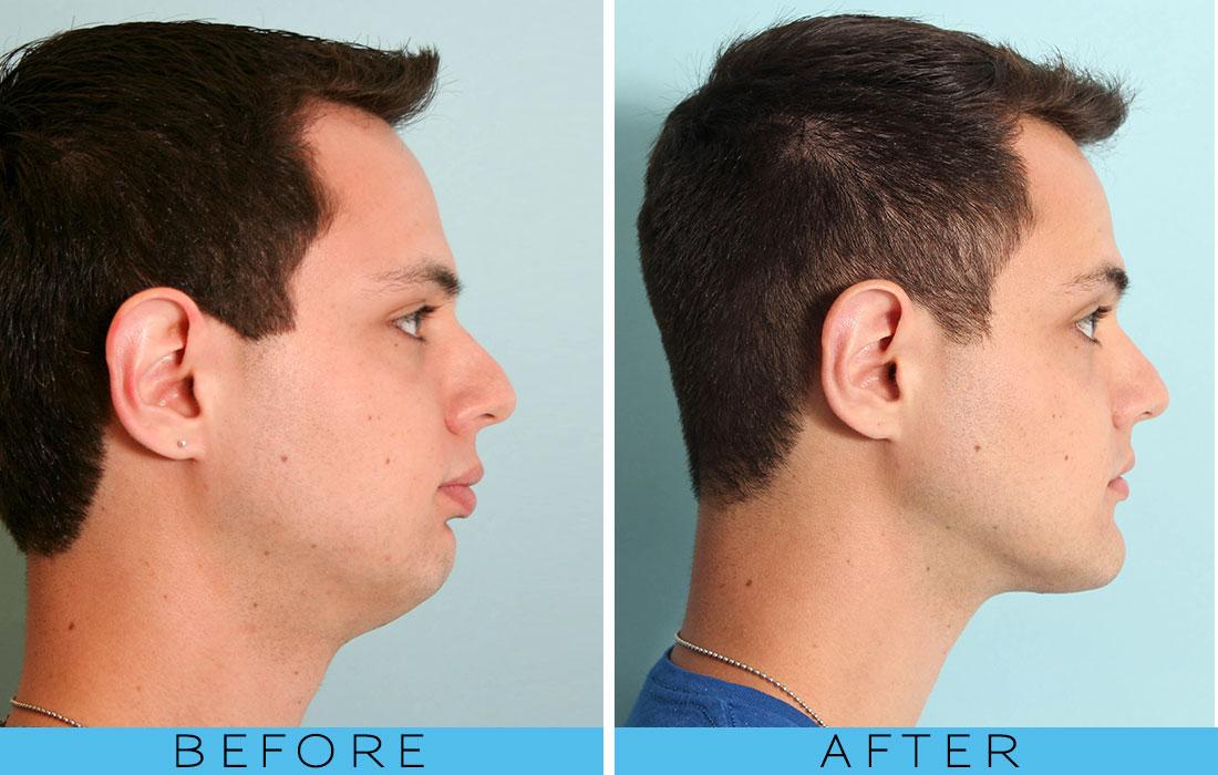 facial and oral surgery