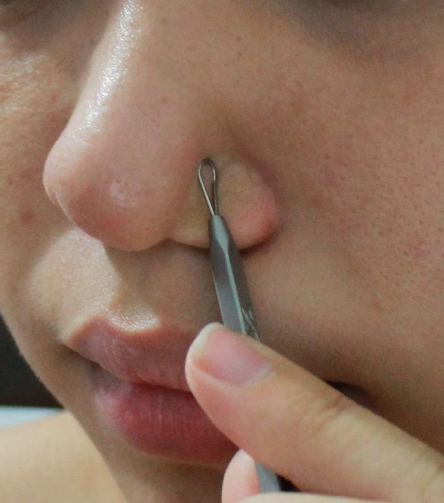 Best and Easy Tips to Remove Blackheads on Nose - Fashion