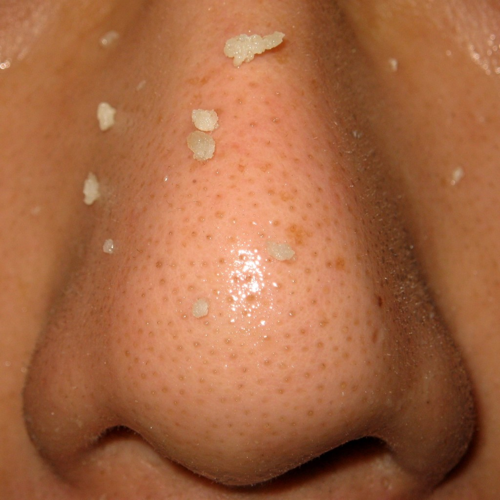 Blackhead Removal On Nose Remove Nose Blackheads