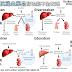 [臨床藥學] 新型抗凝血藥品腎功能不全完全攻略 (NOACs in Renal Dysfunction Patients)