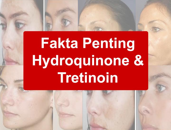 Fakta Harus Tahu Kandungan Kosmetik Mengandungi Hydroquinone dan Tretinoin
