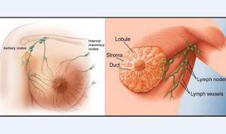 Penyakit Kanker Payudara, Ini Gejalanya